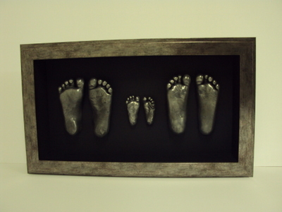 Silver Frame on childs feet casts